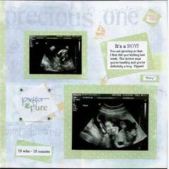 Ultrasound-boy (right)