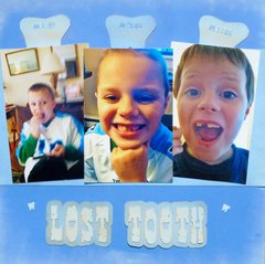 Lost Tooth