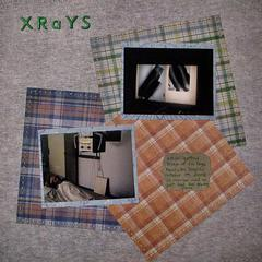 Xrays